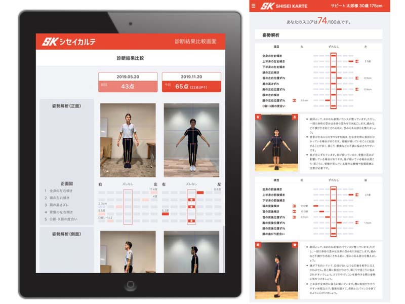 "Posture analysis system ""Posture Medical Record Quick Version"" immediately shows the posture improvement results from chiropractic and other procedures"