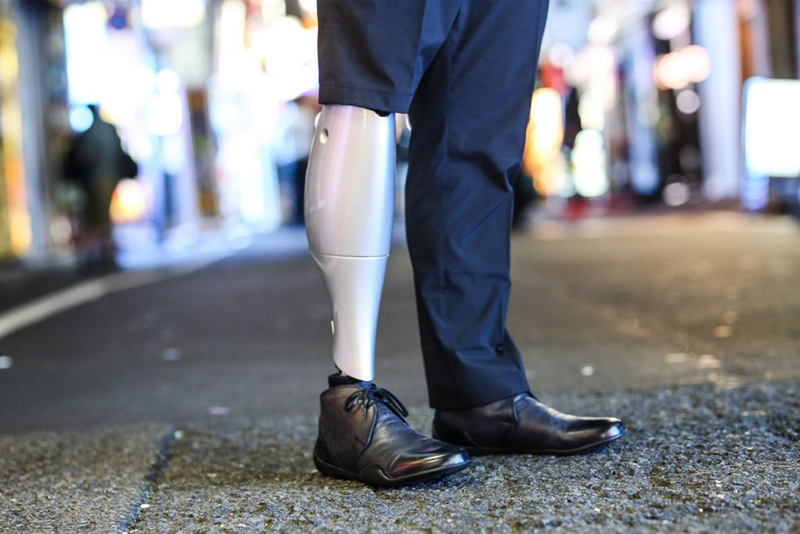 BionicM, a powered prostheses company, strengthens its management structure as it raises $5.18M in funds